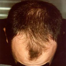 Patient mit hormonell anlagebedingtem Haarverlust, vor und nach 7 ...